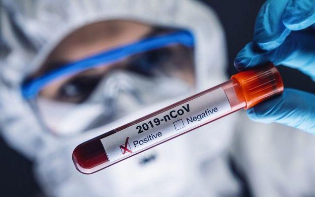 Dünyada koronavirusa yoluxanların sayı 32 milyonu keçdi - STATİSTİKA