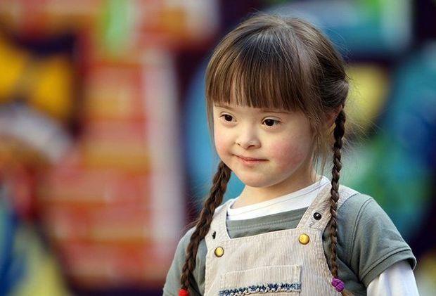 Yaşıl çay ekstraktı Daun sindromlu uşaqların üz quruluşunu dəyişdi - FOTO
